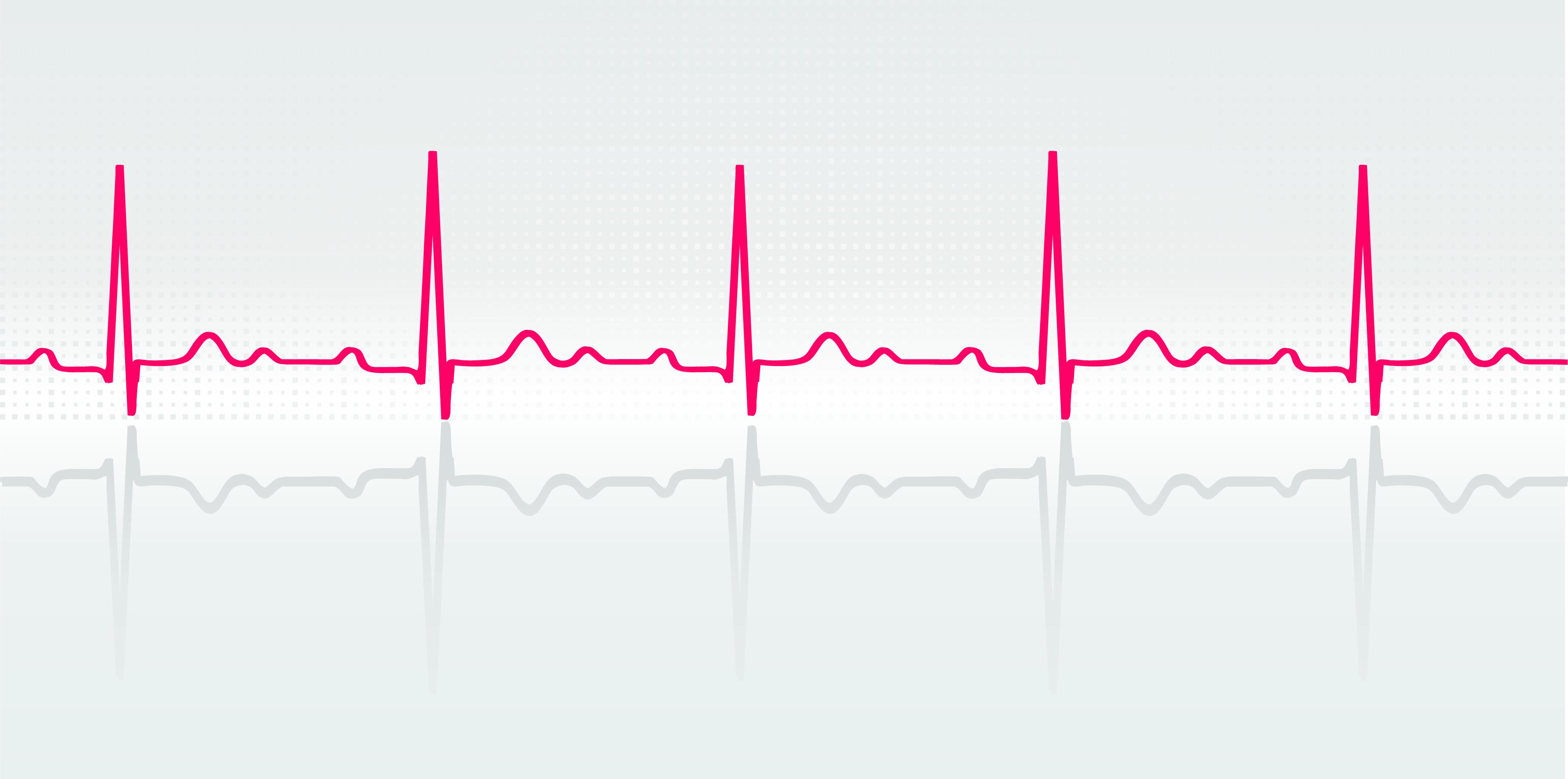 Vector illustration of normal human electrocardiogram. Credit: Shutterstock