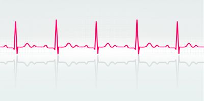 Vector illustration of normal human electrocardiogram. Credit: Shutterstock